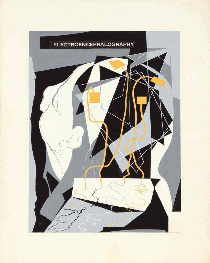 "1949 Image 44 Electroencephalography Poster Paint on Paper 15"" x 12"""